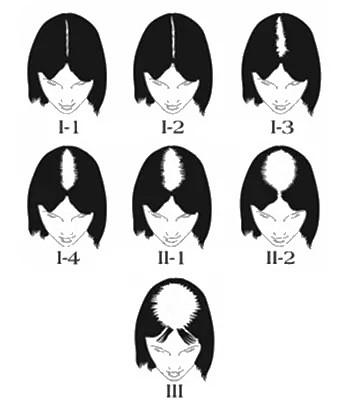 Evaluation calvitie femme