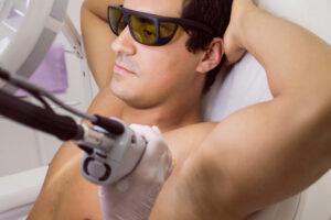 Epilation laser pour hommes à Strasbourg - Clinique Rivoli Massena