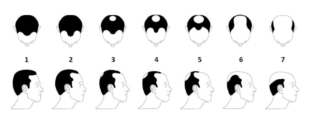 Evaluation calvitie homme