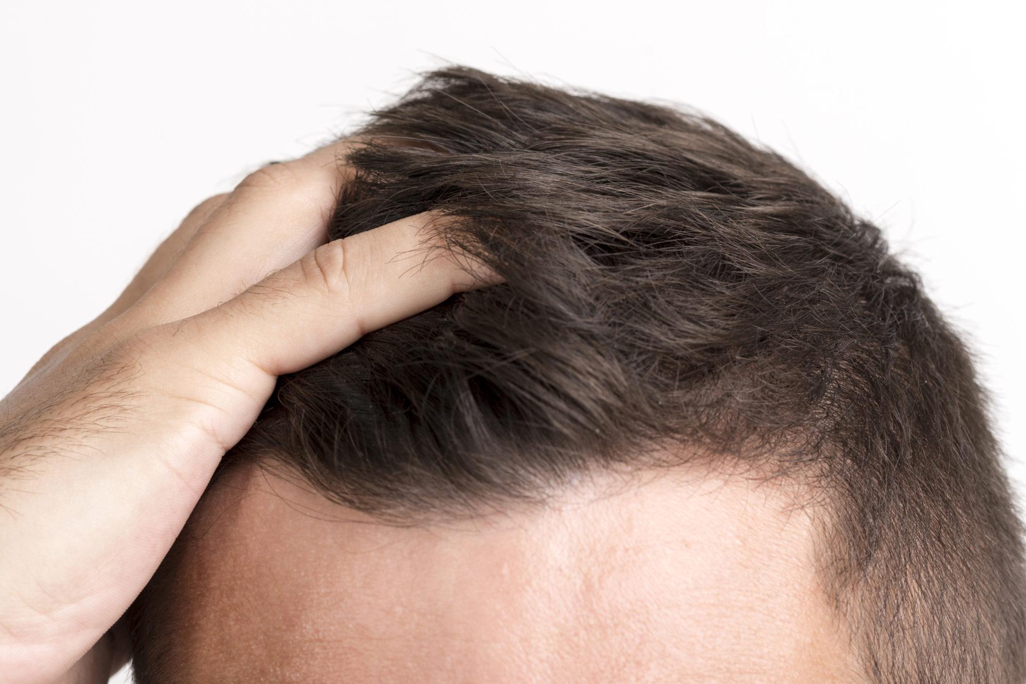 Soins anti chute de cheveux Strasbourg